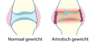 Artrose plaatje
