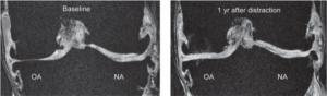 MRI distractie voor en na, verwijzing nodig, contact RvL
