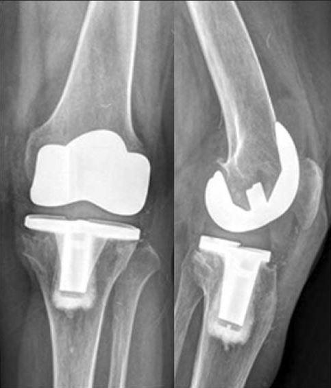 Knieprothese Complicaties Plaatsen En Herstel