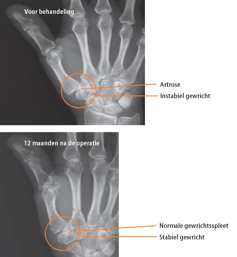 pijnlijke handgewrichten