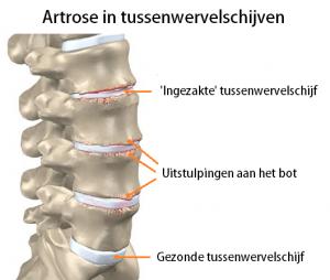 Artrose tussenwervelschijven