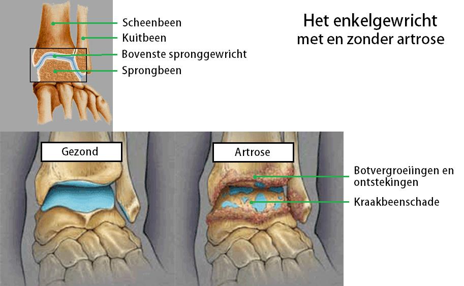 kraakbeenbeschadiging enkel