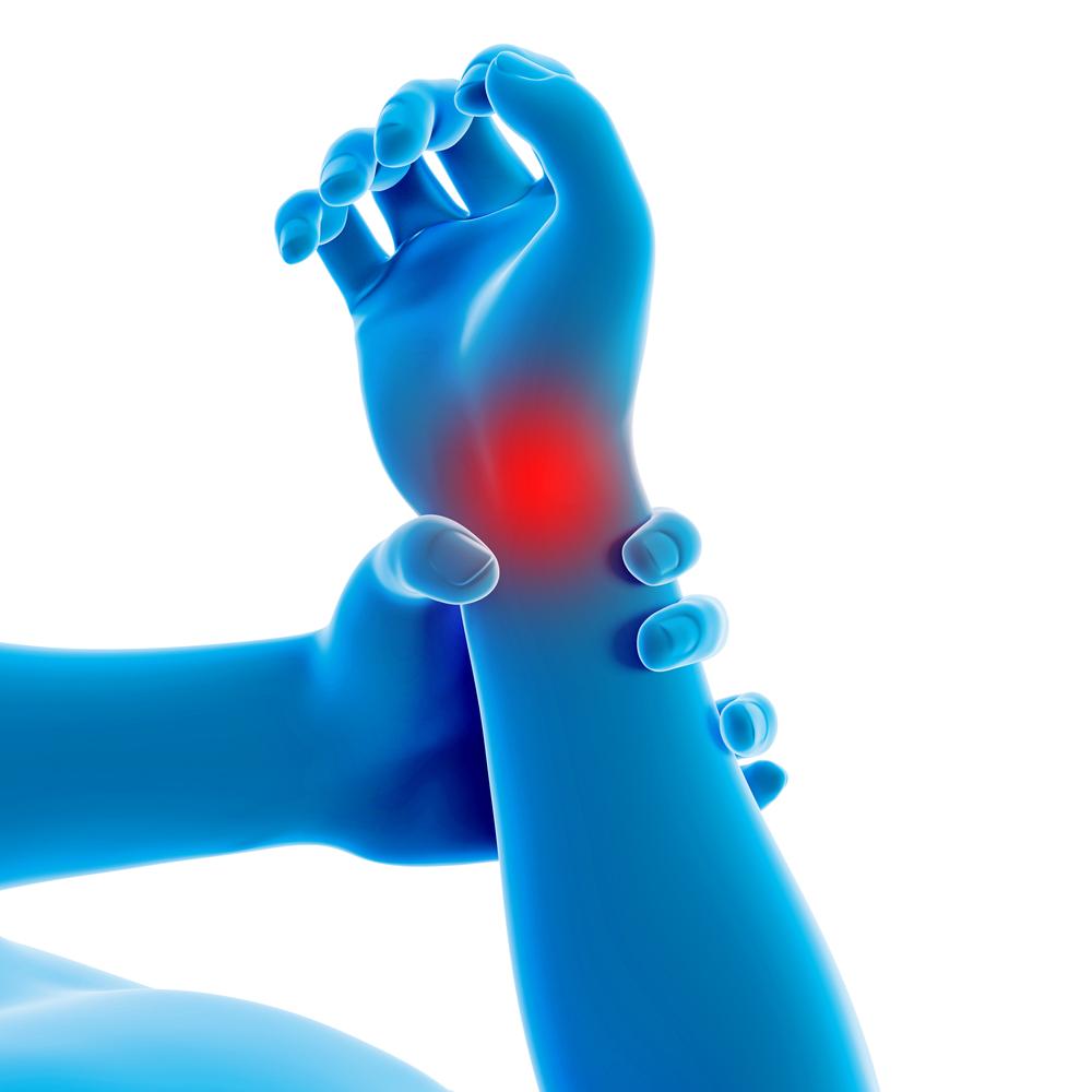 Artrose Pols Oorzaak Symptomen Behandeling Oefeningen