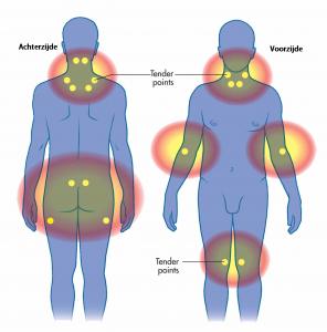 Dit zijn de 18 'tenderpoints' bij fibromyalgie. Klik op de afbeelding om te vergroten.