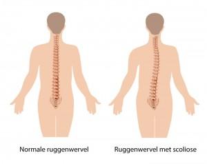 Scoliose Klachten Symptomen Amp Behandeling