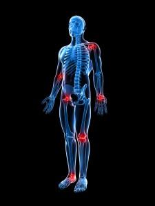 poly-artrose