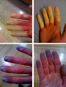 De verschillende fasen bij het fenomeen van Raynaud in de vingers