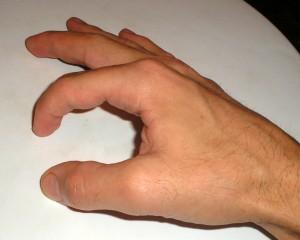 Artrodese in het PIP-gewricht van de wijsvinger: de vinger is in de vorm van een haak vastgezet
