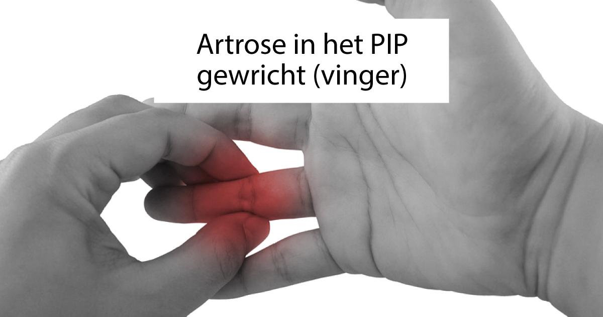 pijnbestrijding artrose