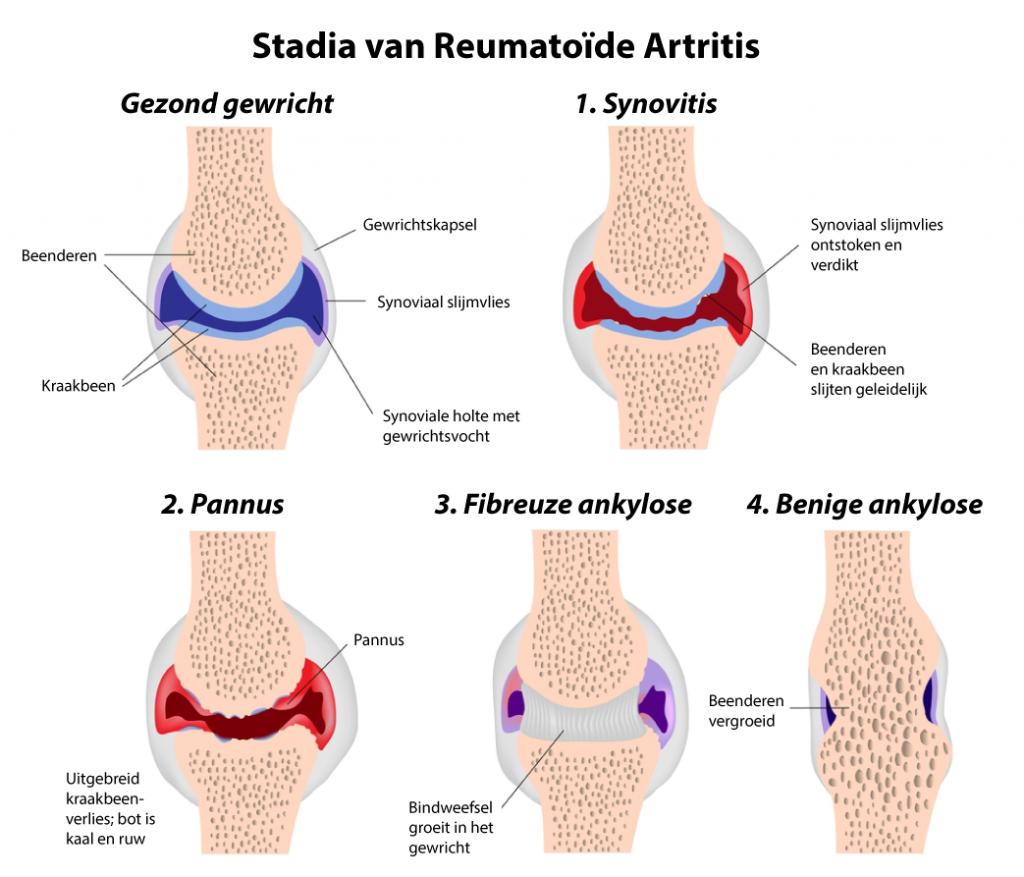Reumatoïde artritis begint met een ontsteking van het slijmvlies. Geleidelijk treden er steeds meer veranderingen in het gewricht op, die niet meer omgekeerd kunnen worden. Tijdig de ontsteking bestrijden is dus van belang!