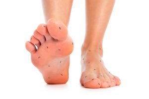 De tintelingen bij neuropathie in de gevoelszenuwen kunnen soms het gevoel geven alsof er mieren over de voeten lopen
