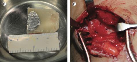 Bij E is te zien hoe ver het neus-kraakbeen is uitgegroeid. Let ook hier weer op de afmetingen in millimeters. Bij F is te zien dat een stukje hiervan in de knie is geplaatst: de hechtdraden zijn duidelijk zichtbaar op de foto.(Deze afbeelding is rechtstreeks afkomstig uit de publicatie. Zie bron beneden.)