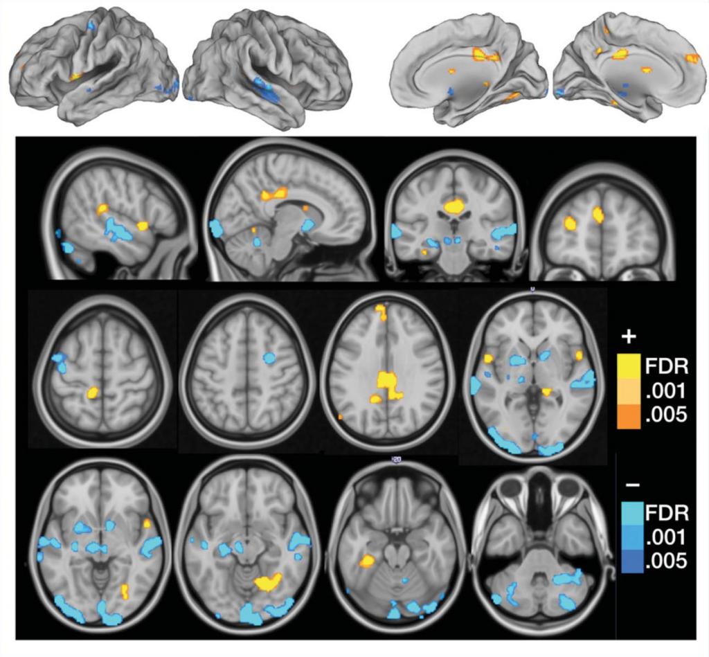 Een van de door de onderzoekers gemaakte afbeeldingen die de gebieden aanwijzen waar mensen met fibromyalgie een afwijkend patroon laten zien. Bron: zie beneden (gehele artikel is op te vragen bij redactie).