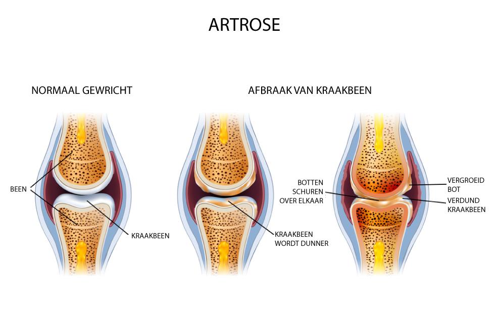 artrose paard