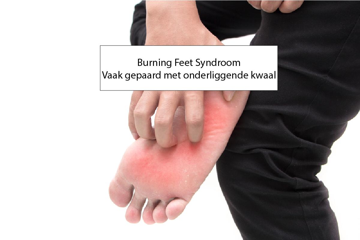 Hete Voeten S Nachts.Burning Feet Syndroom Vaak Veroorzaakt Door Onderliggende