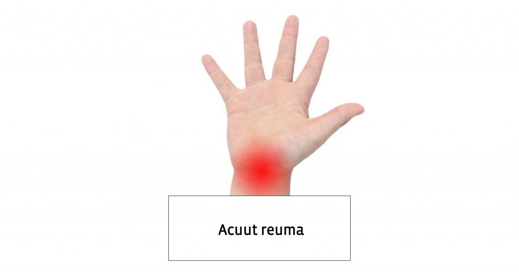 Acuut Reuma Artritis Kind Handen Symptomen Behandeling