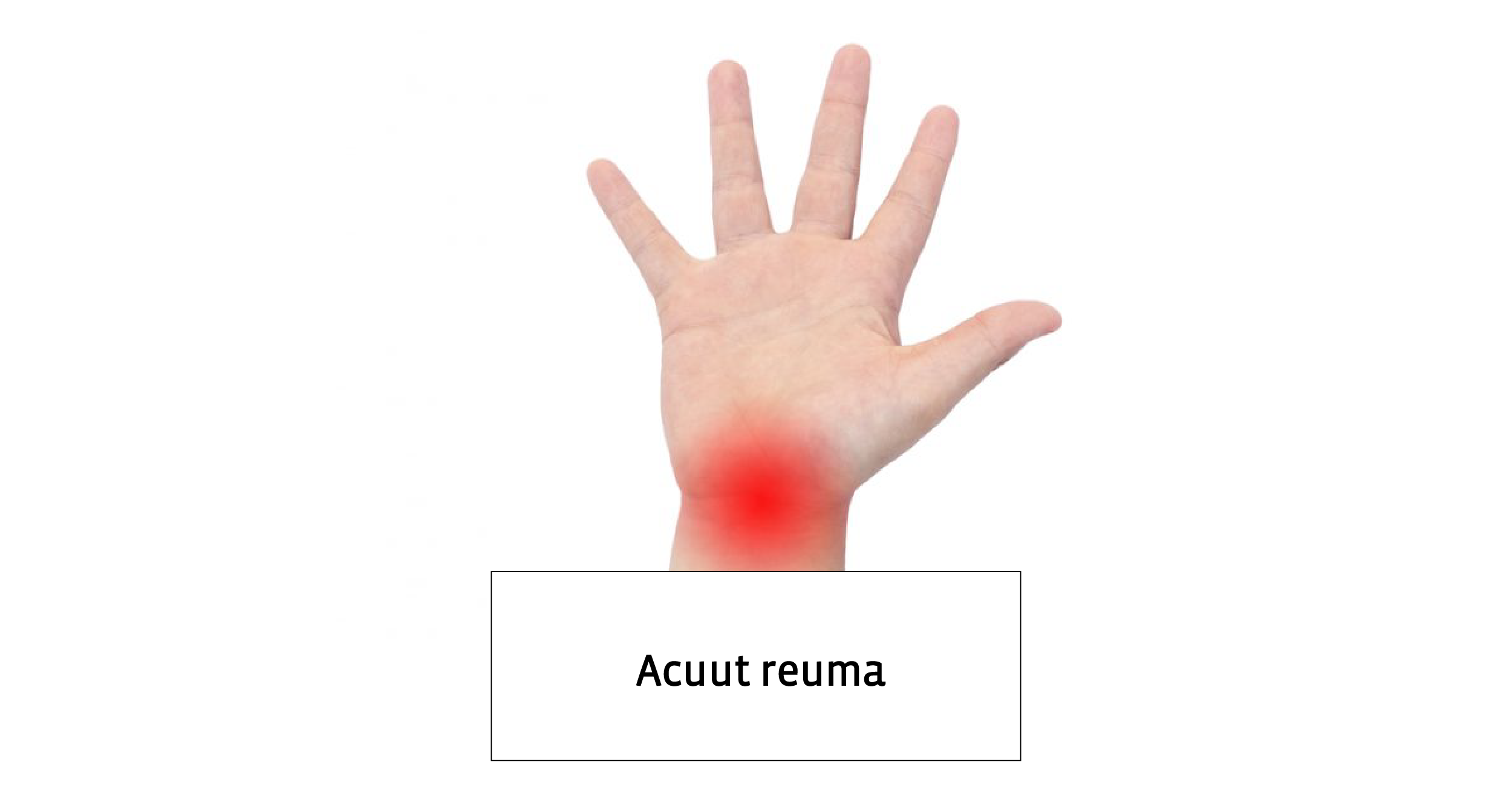 reuma behandeling