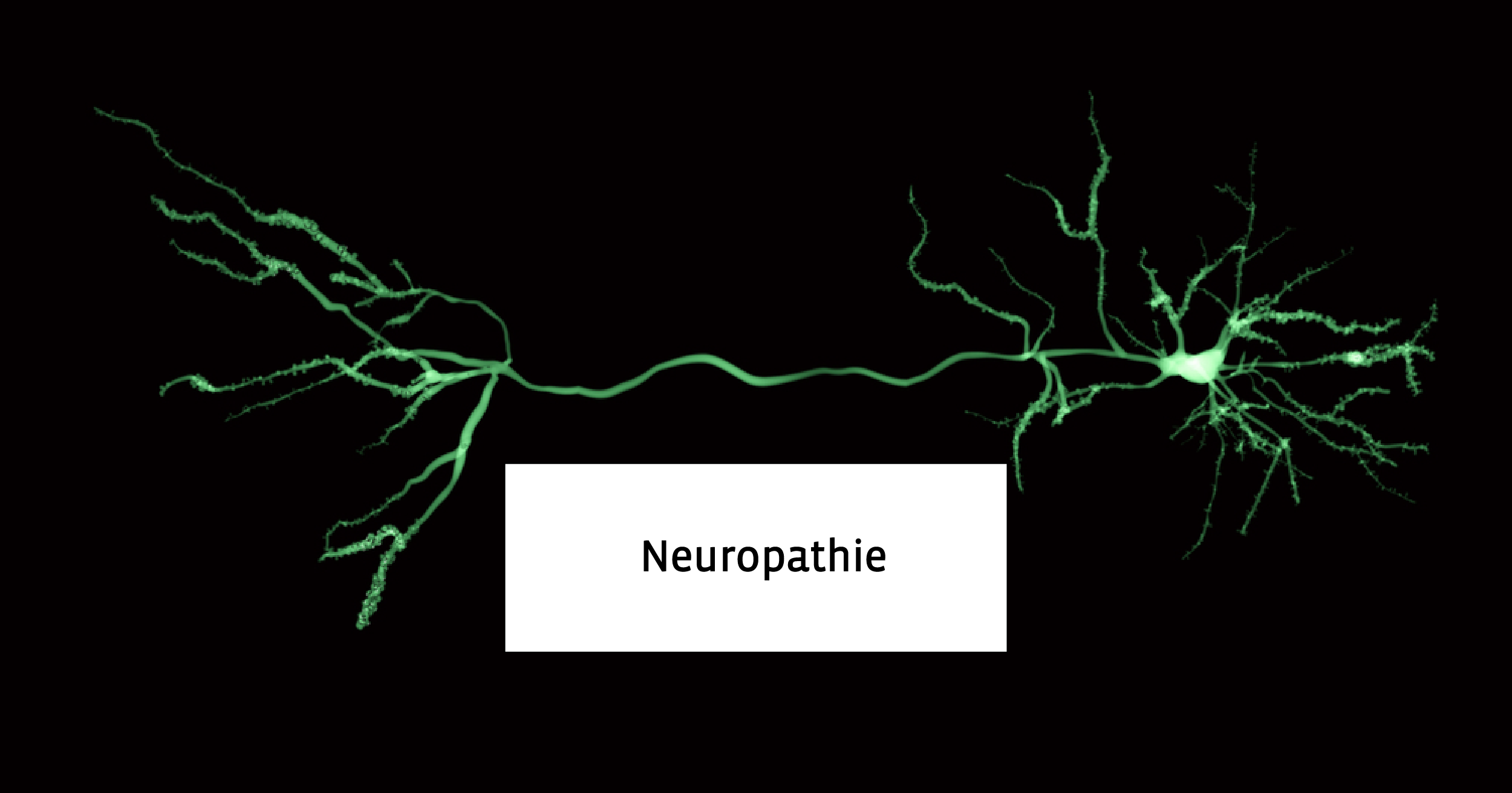 verschil reumatoide artritis en artrose