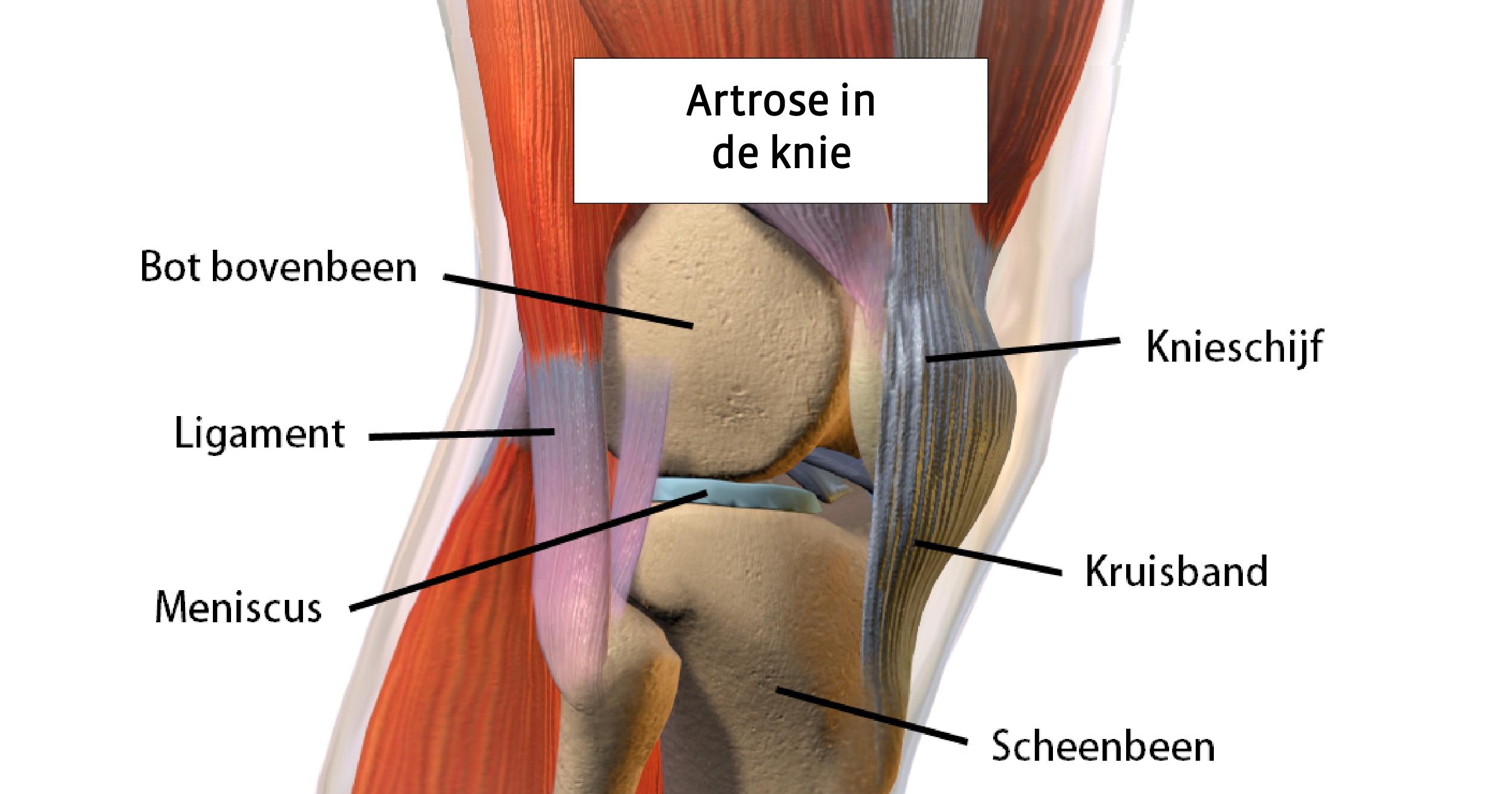 pijnbestrijding artrose heup