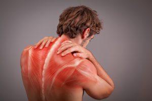 Myofasciaal Pijn Syndroom