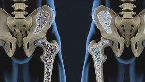 osteoporose-geneesmiddel ook bij artrose