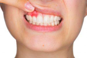 ontsteking van het tandvlees
