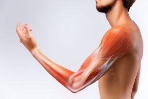 Benigne fasciculatiesyndroom arm