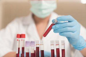 bloedtest reumatoide artritis