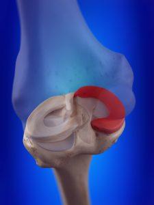 Meniscus artrose