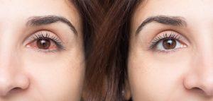 oogproblemen reuma
