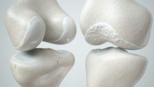 Beschadigd kraakbeen herstellen