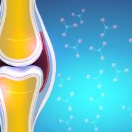 Gewrichtssmeervloeistof speelt sleutelrol bij artrosepijn