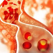 'Lelijk' cholesterol net zo gevaarlijk voor hart en bloedvaten als LDL