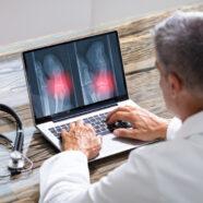 'Skeletleeftijd' voorspelt kans op botbreuken